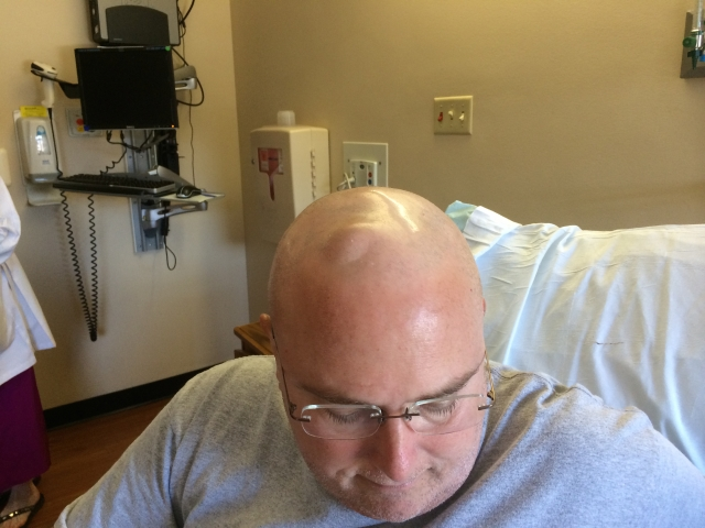 The bump on my head is a silicone disk connected to a tube that travels to the middle of my brain. Chemotherapy is instilled into the CSF (fluid) in the middle of the brain